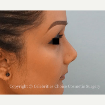 25-34 year old woman treated with Rhinoplasty after 3013586