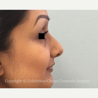 25-34 year old woman treated with Rhinoplasty before 3013586