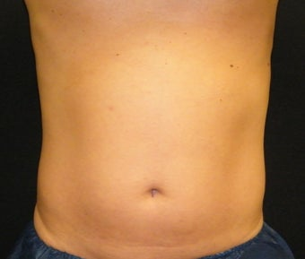 CoolSculpting after 622014