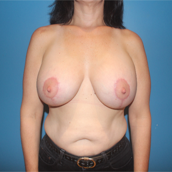 35-44 year old woman treated with Breast Lift with Implants after 3771504