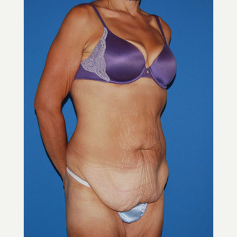 35-44 year old woman treated with Panniculectomy before 2879534