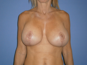 45-54 year old woman treated with Breast Lift with Implants after 1608380
