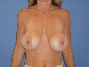 45-54 year old woman treated with Breast Lift with Implants before 1608380