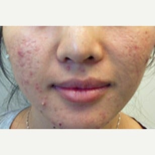 18-24 year old woman treated with Accutane before 2031224