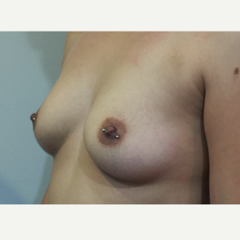 18-24 year old woman treated with Breast Augmentation before 3583321