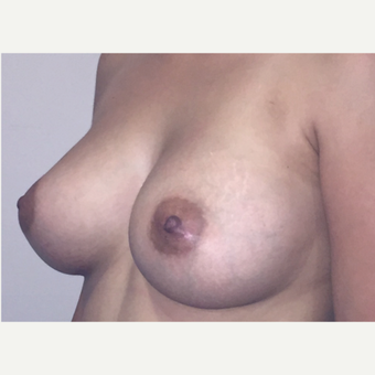 18-24 year old woman treated with Breast Augmentation after 3583321