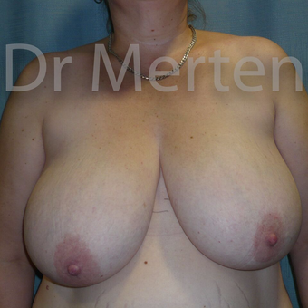Breast Reduction before 3681278