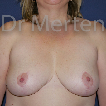 Breast Reduction after 3681278
