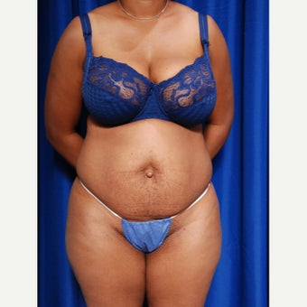 35-44 year old woman treated with Tummy Tuck before 2415749