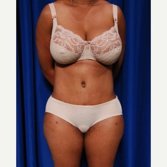 35-44 year old woman treated with Tummy Tuck after 2415749