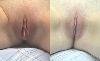 Labiaplasty before 3037823