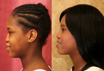 African-American Rhinoplasty after 1009898