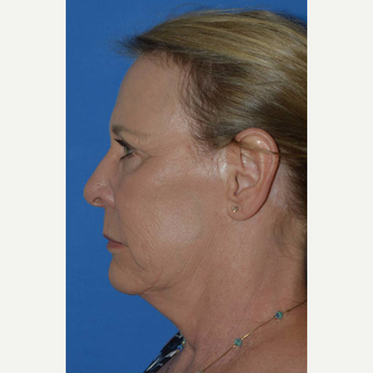 55-64 year old woman treated with Facelift before 3781984