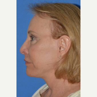 55-64 year old woman treated with Facelift after 3781984