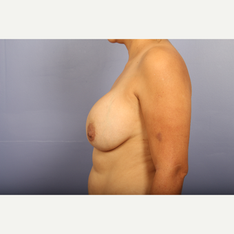 25-34 year old woman treated with Breast Lift with Implants before 3110322
