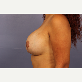 25-34 year old woman treated with Breast Lift with Implants after 3110322