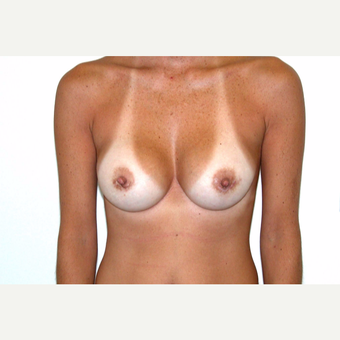 35-44 year old woman treated with Breast Augmentation after 3377716