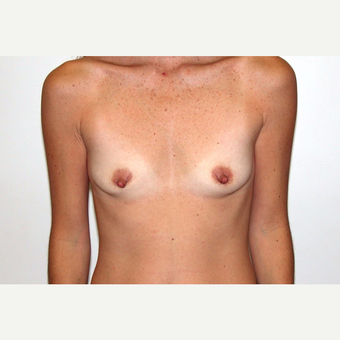 35-44 year old woman treated with Breast Augmentation before 3377716