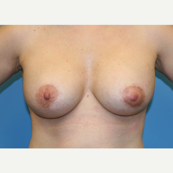 43 year old woman treated with Breast Lift after 3582227
