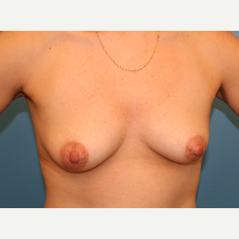 43 year old woman treated with Breast Lift before 3582227