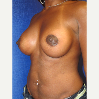 35-44 year old woman treated with Breast Augmentation after 3136081