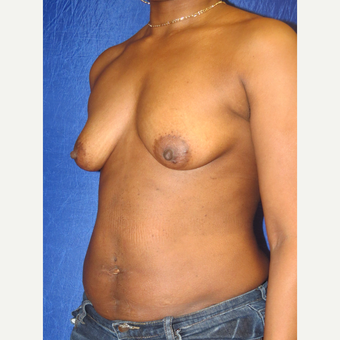 35-44 year old woman treated with Breast Augmentation before 3136081