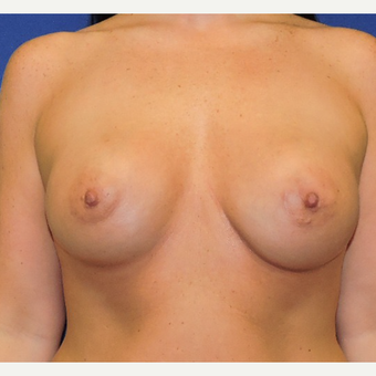 25-34 year old woman treated with Breast Augmentation after 3761933
