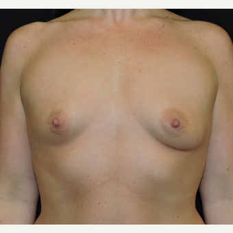 25-34 year old woman treated with Breast Augmentation before 3761933