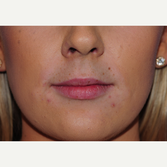 23 year old woman treated with Lip Augmentation before 3543135