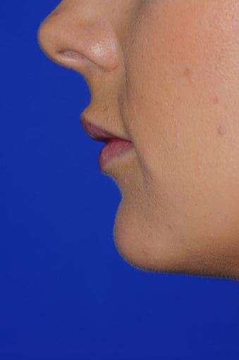 23 year old woman treated with Lip Augmentation 3543135