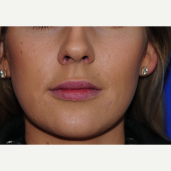 23 year old woman treated with Lip Augmentation after 3543135