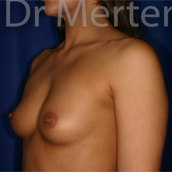25-34 year old woman treated with Breast Augmentation before 3551929