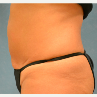 35-44 year old woman treated with Liposuction after 3731780