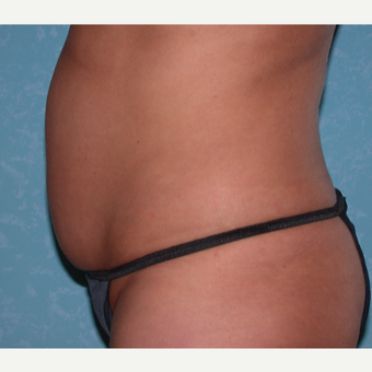 35-44 year old woman treated with Liposuction before 3731780