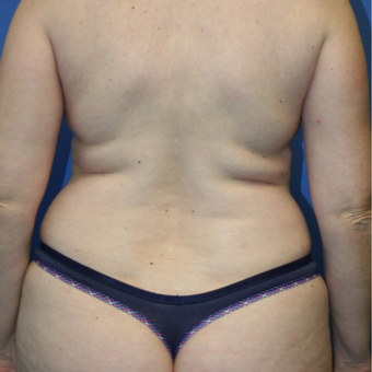 35-44 year old woman treated with Liposuction before 2994484