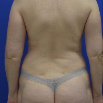 35-44 year old woman treated with Liposuction after 2994484