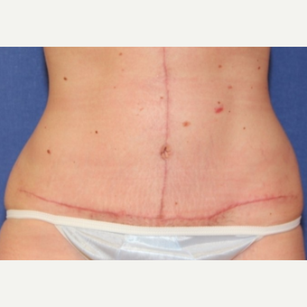 38 year old woman treated with a abdominoplasty (tummy tuck) with vertical extension after 3037116