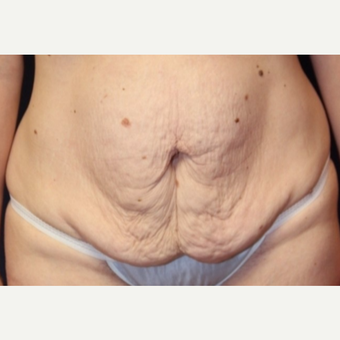 38 year old woman treated with a abdominoplasty (tummy tuck) with vertical extension before 3037116
