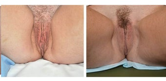 Before and after Labiaplasty after 1210385