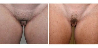 Before and after Labiaplasty before 1210385