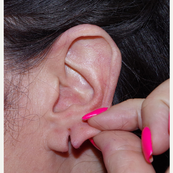 45-54 year old woman treated with Ear Lobe Surgery before 3741903