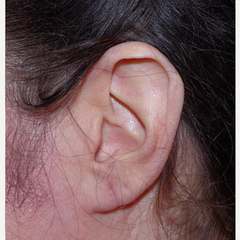 45-54 year old woman treated with Ear Lobe Surgery after 3741903