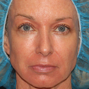 52 year old woman treated with Laser Resurfacing