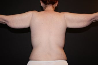 Female - Brachioplasty before 1057098