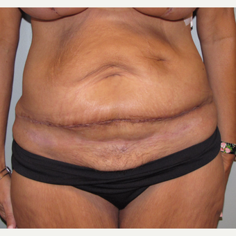45-54 year old woman treated with Panniculectomy after 3583823