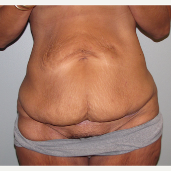 45-54 year old woman treated with Panniculectomy before 3583823