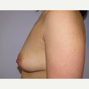 33 year old woman underwent breast augmentation with 380 cc silicone breast implants before 3467928