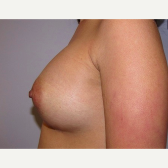 33 year old woman underwent breast augmentation with 380 cc silicone breast implants after 3467928