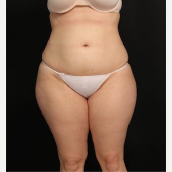 32 year old female with liposuction of abdomen and hips after 3576106
