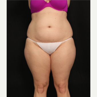 32 year old female with liposuction of abdomen and hips before 3576106